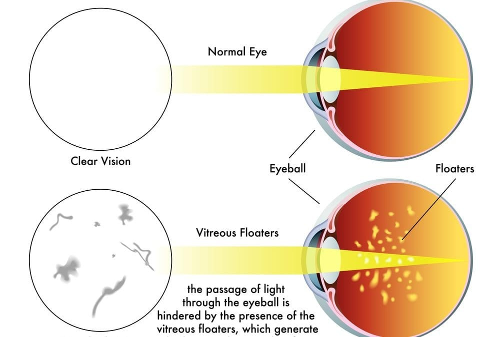 What are Eye Floaters?