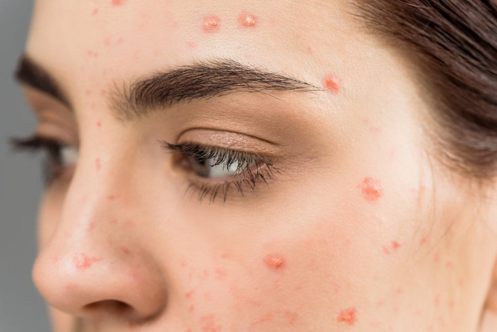 Causes of Acne on Cheeks and Forehead
